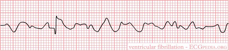Rhythm_ventricular_fibrillation
