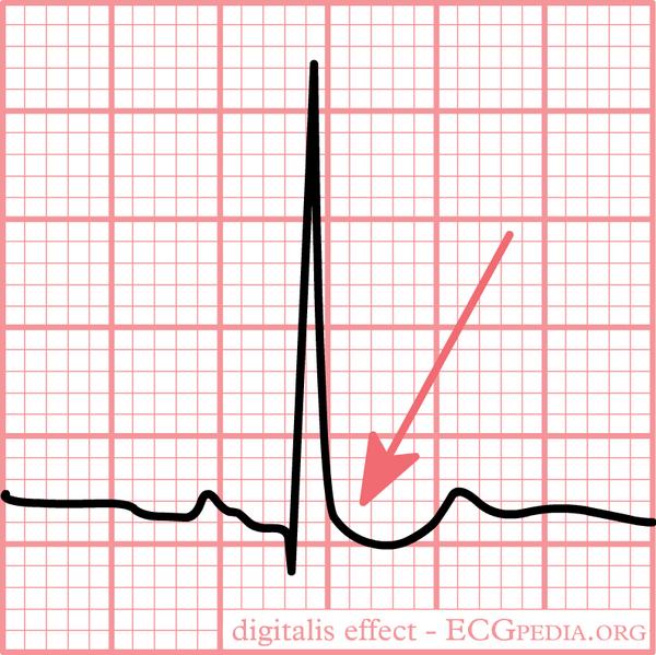 digilatlis effect on ECG